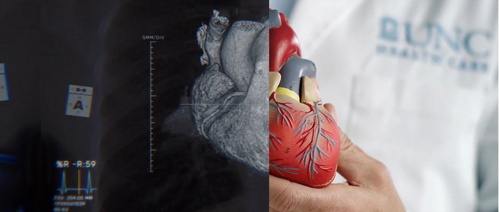 Image of model of heart with half of image an x-ray of heart and half of image a heart model